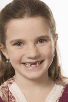 Hur man gör en tand halsband för ett barn som förlorat den första tanden